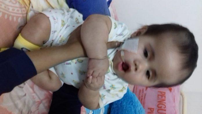 Anggelo, Bayi Hidrosefalus Hanya Pemulihan, Tidak Operasi