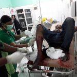 Catatan Kriminal Rino, Residivis yang Kabur dari Polres Sikka